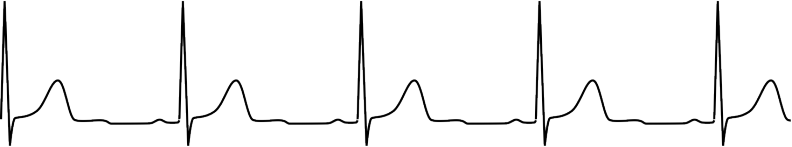 Electrocardiogramme du 27/02/2008